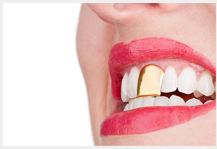 What You Need to Review While Buying Custom Grillz